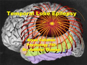 aktivite-epileptik-nan-sevo-a