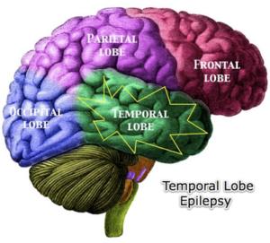 aktivite-epileptik-nan-sevo-a1